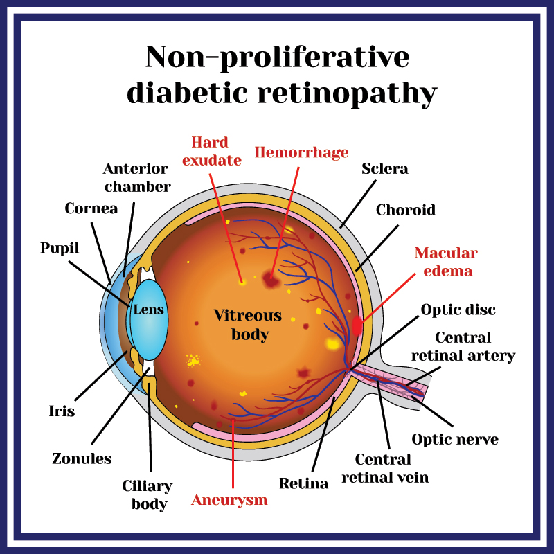 Medical Illustration of Non-proliferative Diabetic Retinopathy