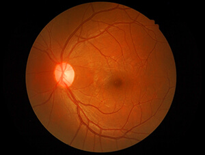 Photo of A Normal Macula