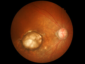 Dry Macular Degeneration with Geographic Atrophy