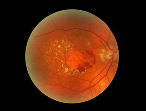 Wet Macular Degeneration with Fluid Under the Macula.