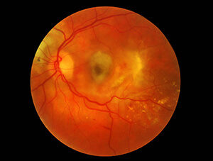 Wet Macular Degeneration with scar tissue formation.